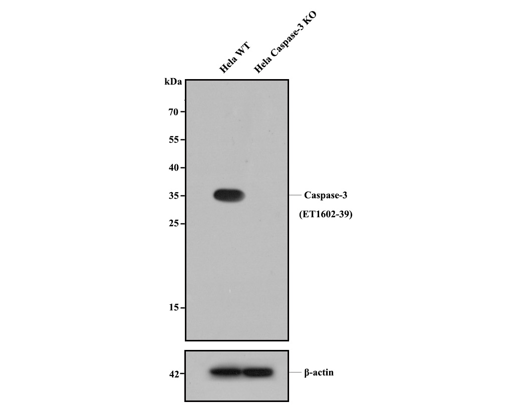 All lanes: Western blot analysis of Caspase-3 with anti-Caspase-3 antibody [SR03-01] (ET1602-39) at 1:500 dilution.<br /> Lane 1: Wild-type Hela whole cell lysate (20 µg).<br /> Lane 2: Caspase-3 knockout Hela whole cell lysate (20 µg).<br /> <br /> ET1602-39 was shown to specifically react with Caspase-3 in wild-type Hela cells. No band was observed when Caspase-3 knockout samples were tested. Wild-type and Caspase-3 knockout samples were subjected to SDS-PAGE. Proteins were transferred to a PVDF membrane and blocked with 5% NFDM in TBST for 1 hour at room temperature. The primary antibody (ET1602-39, 1/500) and Loading control antibody (Rabbit anti-β-actin, R1207-1, 1/1,000) was used in 5% BSA at room temperature for 2 hours. Goat Anti-Rabbit IgG-HRP Secondary Antibody (HA1001) at 1:200,000 dilution was used for 1 hour at room temperature.