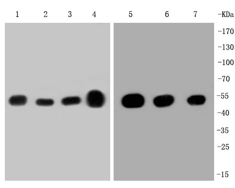 Western blot analysis of beta Tubulin on different lysates. Proteins were transferred to a PVDF membrane and blocked with 5% BSA in PBS for 1 hour at room temperature. The primary antibody (ET1602-4, 1/500) was used in 5% BSA at room temperature for 2 hours. Goat Anti-Rabbit IgG - HRP Secondary Antibody (HA1001) at 1:5,000 dilution was used for 1 hour at room temperature.<br /> Positive control: <br /> Lane 1: A431 cell lysate<br /> Lane 2: MCF-7 cell lysate<br /> Lane 3: SH-SY5Y cell lysate<br /> Lane 4: mouse brain tissue lysate<br /> Lane 5: Hela cell lysate<br /> Lane 6: NIH/3T3 cell lysate<br /> Lane 7: PC-12 cell lysate