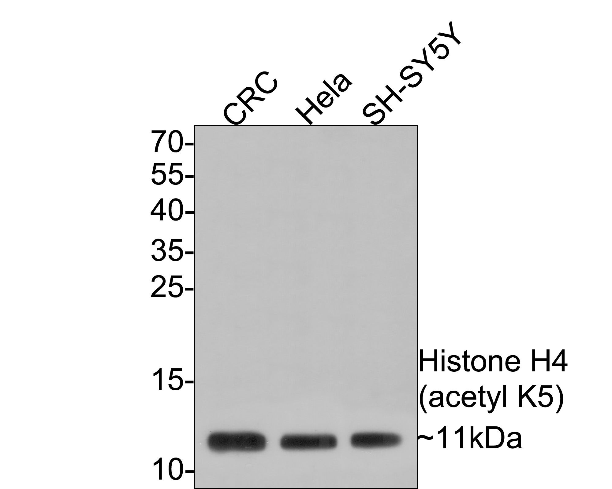 Western blot analysis of Histone H4(acetyl K5) on different lysates. Proteins were transferred to a PVDF membrane and blocked with 5% BSA in PBS for 1 hour at room temperature. The primary antibody (ET1602-40, 1/500) was used in 5% BSA at room temperature for 2 hours. Goat Anti-Rabbit IgG - HRP Secondary Antibody (HA1001) at 1:5,000 dilution was used for 1 hour at room temperature.<br /> Positive control: <br /> Lane 1: CRC cell lysate<br /> Lane 2: Hela cell lysate<br /> Lane 3: SH-SY5Y cell lysate