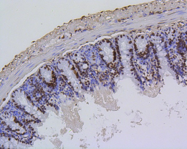 Immunohistochemical analysis of paraffin-embedded mouse colon tissue using anti-Histone H4(acetyl K5) antibody. The section was pre-treated using heat mediated antigen retrieval with Tris-EDTA buffer (pH 8.0-8.4) for 20 minutes.The tissues were blocked in 5% BSA for 30 minutes at room temperature, washed with ddH2O and PBS, and then probed with the primary antibody (ET1602-40, 1/50) for 30 minutes at room temperature. The detection was performed using an HRP conjugated compact polymer system. DAB was used as the chromogen. Tissues were counterstained with hematoxylin and mounted with DPX.