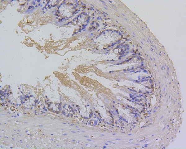 Immunohistochemical analysis of paraffin-embedded mouse colon tissue using anti-Survivin antibody. The section was pre-treated using heat mediated antigen retrieval with Tris-EDTA buffer (pH 8.0-8.4) for 20 minutes.The tissues were blocked in 5% BSA for 30 minutes at room temperature, washed with ddH2O and PBS, and then probed with the primary antibody (ET1602-43, 1/50) for 30 minutes at room temperature. The detection was performed using an HRP conjugated compact polymer system. DAB was used as the chromogen. Tissues were counterstained with hematoxylin and mounted with DPX.