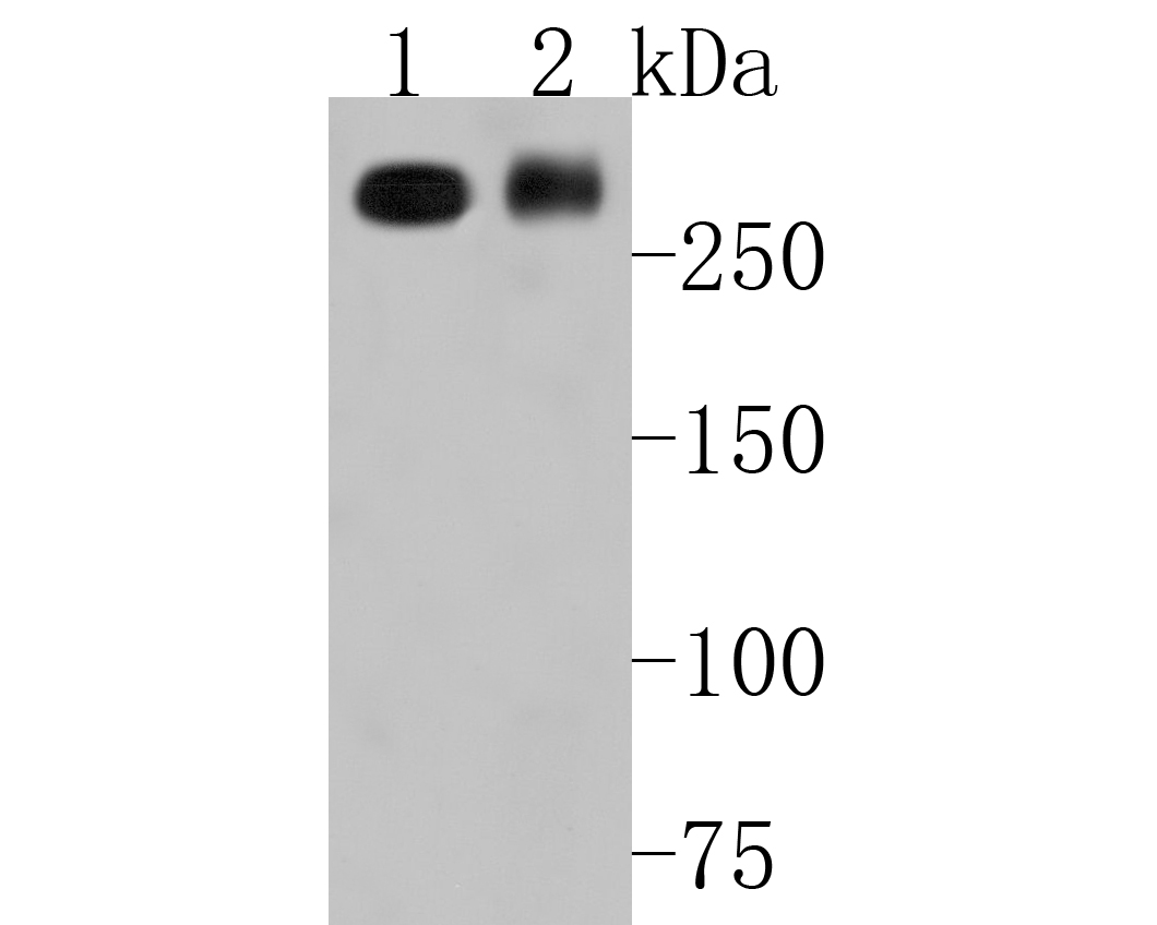 Western blot analysis of M6PR on different lysates. Proteins were transferred to a PVDF membrane and blocked with 5% BSA in PBS for 1 hour at room temperature. The primary antibody (ET1602-5, 1/500) was used in 5% BSA at room temperature for 2 hours. Goat Anti-Rabbit IgG - HRP Secondary Antibody (HA1001) at 1:5,000 dilution was used for 1 hour at room temperature.<br /> Positive control: <br /> Lane 1: SiHa cell lysate<br /> Lane 2: human skin tissue lysate