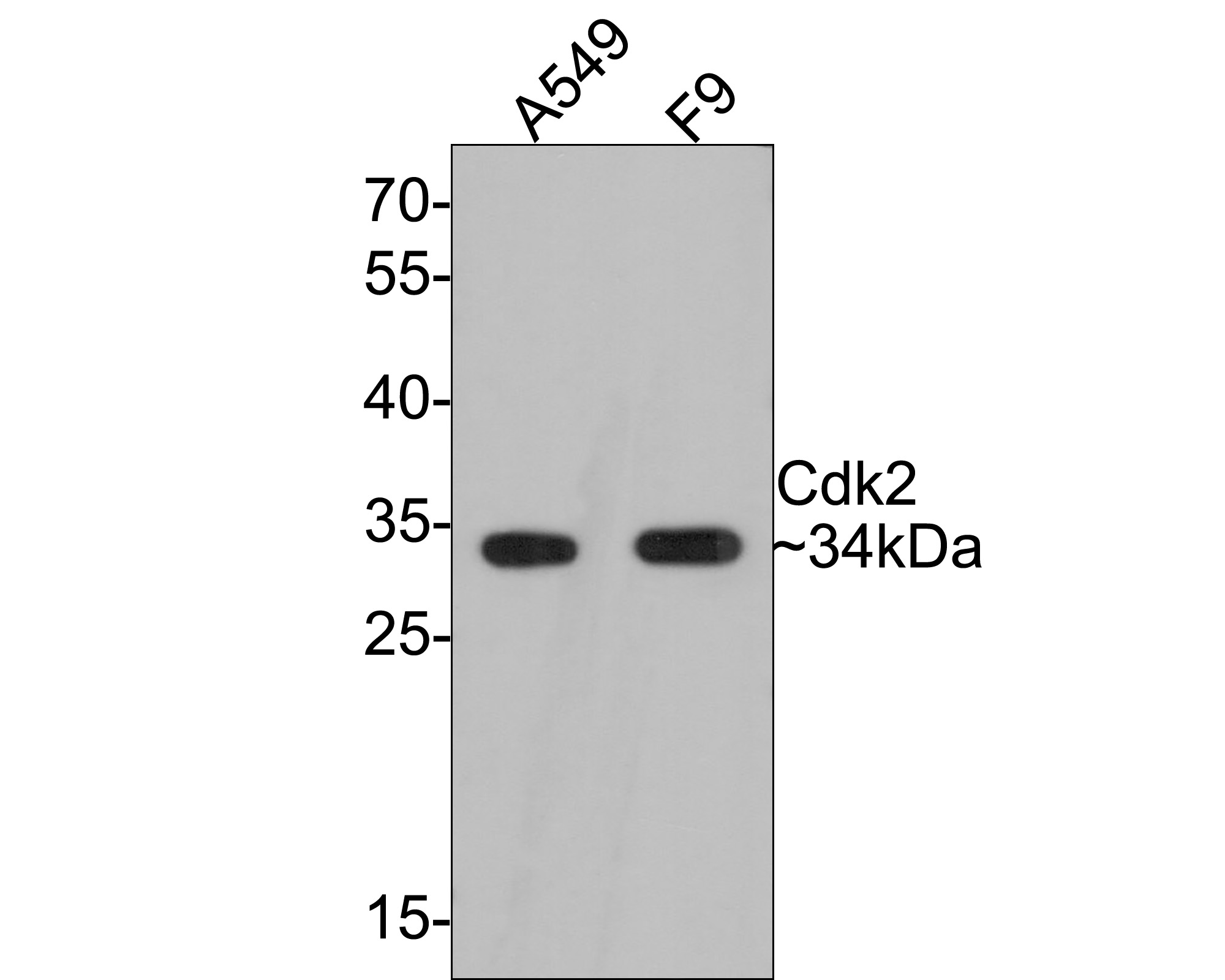 Western blot analysis of Cdk2 on different lysates. Proteins were transferred to a PVDF membrane and blocked with 5% BSA in PBS for 1 hour at room temperature. The primary antibody (ET1602-6, 1/500) was used in 5% BSA at room temperature for 2 hours. Goat Anti-Rabbit IgG - HRP Secondary Antibody (HA1001) at 1:5,000 dilution was used for 1 hour at room temperature. Positive control:  Lane 1: A549 cell lysate Lane 2: F9 cell lysate