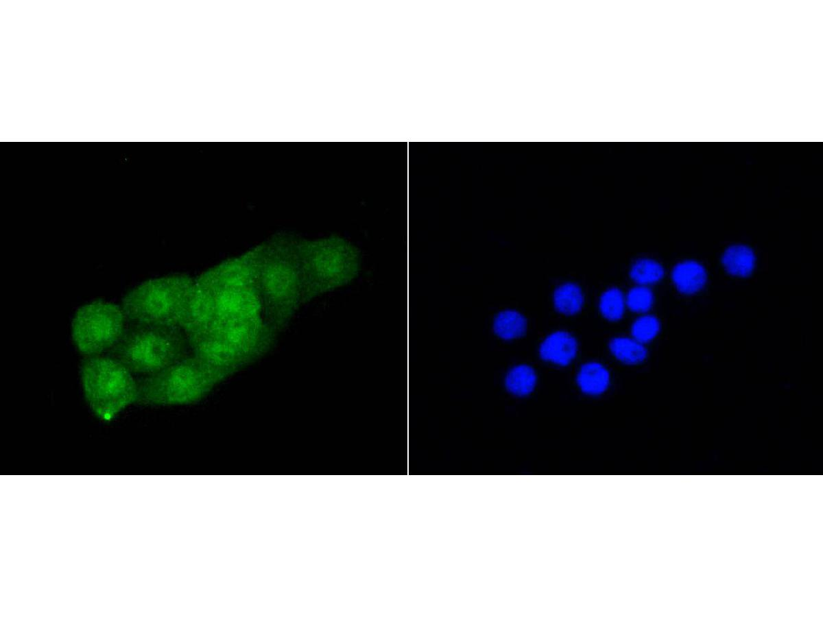 ICC staining of Cdk2 in CRC cells (green). Formalin fixed cells were permeabilized with 0.1% Triton X-100 in TBS for 10 minutes at room temperature and blocked with 1% Blocker BSA for 15 minutes at room temperature. Cells were probed with the primary antibody (ET1602-6, 1/50) for 1 hour at room temperature, washed with PBS. Alexa Fluor®488 Goat anti-Rabbit IgG was used as the secondary antibody at 1/1,000 dilution. The nuclear counter stain is DAPI (blue).