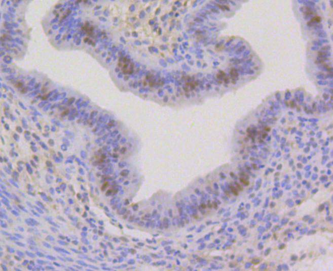 Flow cytometric analysis of HP1 alpha was done on SH-SY5Y cells. The cells were fixed, permeabilized and stained with the primary antibody (ET1602-8, 1/50) (blue). After incubation of the primary antibody at room temperature for an hour, the cells were stained with a Alexa Fluor®488 conjugate-Goat anti-Rabbit IgG Secondary antibody at 1/1000 dilution for 30 minutes.Unlabelled sample was used as a control (cells without incubation with primary antibody; red).