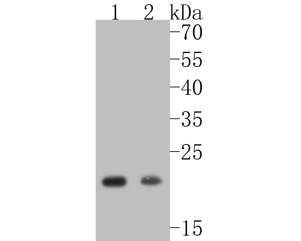 Western blot analysis of Caveolin-1 on different lysates. Proteins were transferred to a PVDF membrane and blocked with 5% BSA in PBS for 1 hour at room temperature. The primary antibody (ET1603-1, 1/500) was used in 5% BSA at room temperature for 2 hours. Goat Anti-Rabbit IgG - HRP Secondary Antibody (HA1001) at 1:5,000 dilution was used for 1 hour at room temperature.<br /> Positive control: <br /> Lane 1: A549 cell lysate<br /> Lane 2: A431 cell lysate