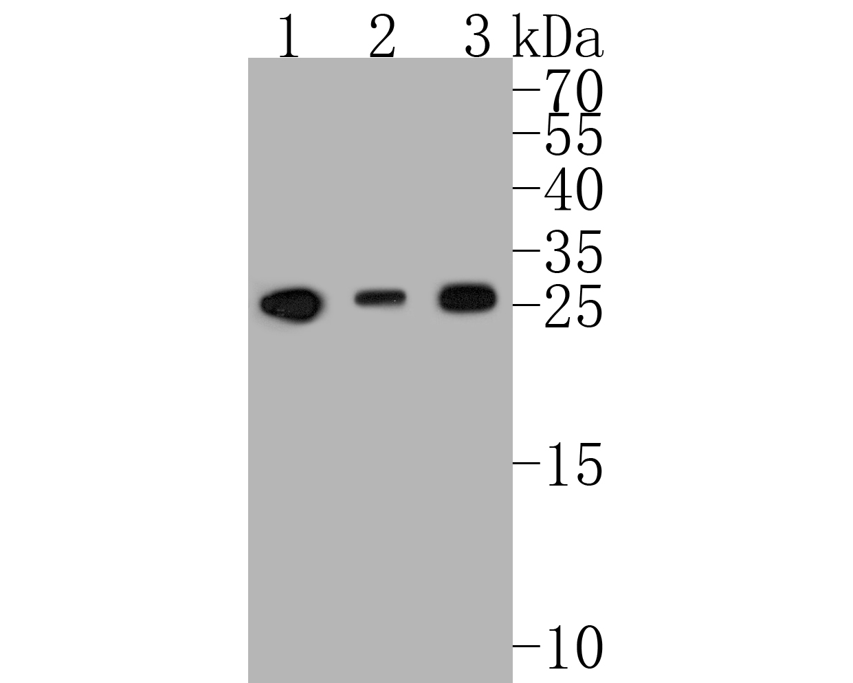 Western blot analysis of Bcl-2 on different lysates. Proteins were transferred to a PVDF membrane and blocked with 5% BSA in PBS for 1 hour at room temperature. The primary antibody (ET1603-11, 1/500) was used in 5% BSA at room temperature for 2 hours. Goat Anti-Rabbit IgG - HRP Secondary Antibody (HA1001) at 1:5,000 dilution was used for 1 hour at room temperature.<br /> Positive control: <br /> Lane 1: Jurkat cell lysate<br /> Lane 2: U937 cell lysate<br /> Lane 3: THP-1 cell lysate