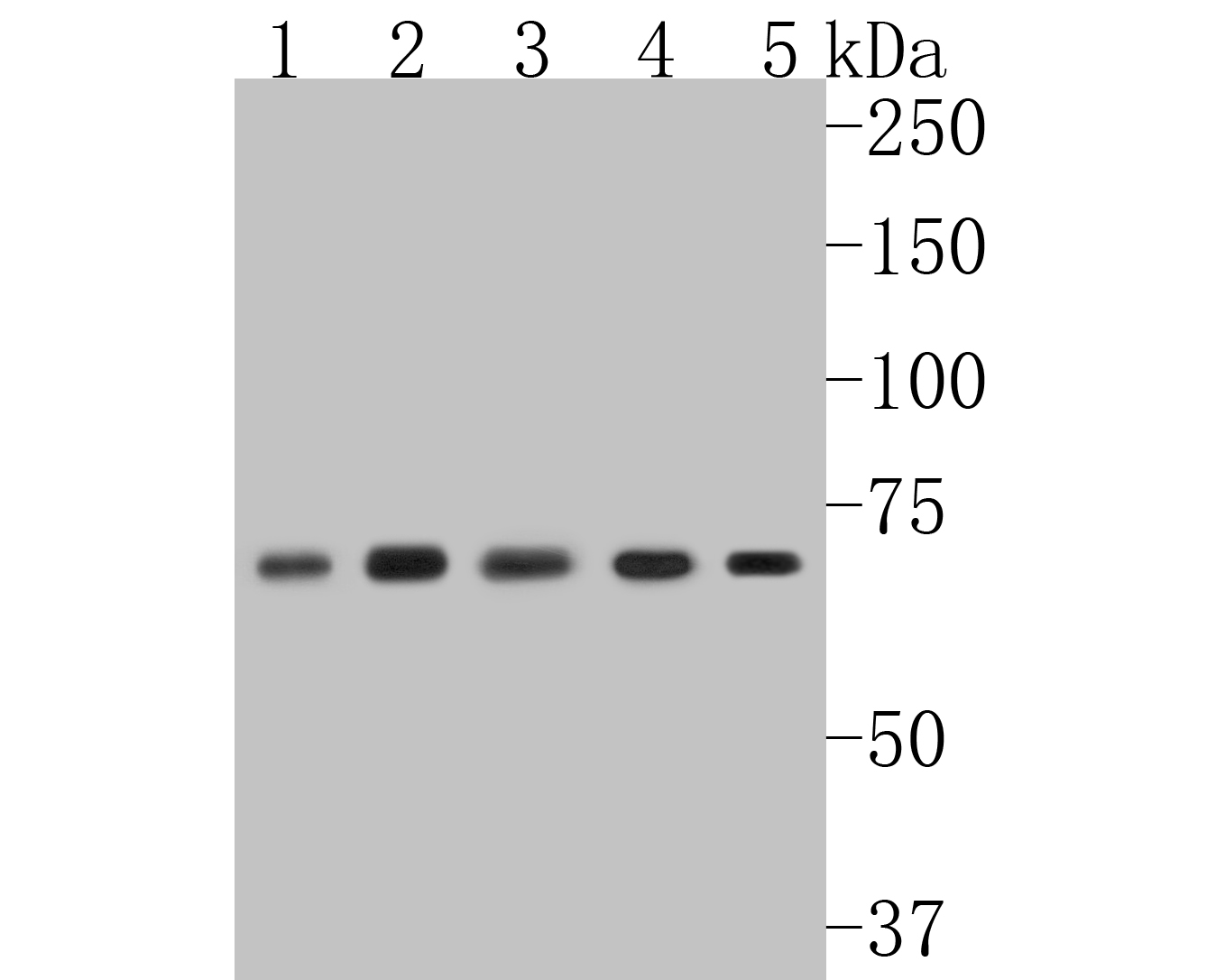 Western blot analysis of NF-κB p65 on normal (Hela Control) and NF-κB p65 knockolut Hela lysates. Proteins were transferred to a PVDF membrane and blocked with 5% BSA in PBS for 1 hour at room temperature. The primary antibody (ET1603-12, 1/500) was used in 5% BSA at room temperature for 2 hours. Goat Anti-Rabbit IgG - HRP Secondary Antibody (HA1001) at 1:5,000 dilution was used for 1 hour at room temperature.