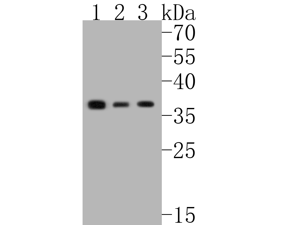 Western blot analysis of Phospho-eIF-2a(S51) on different lysates. Proteins were transferred to a PVDF membrane and blocked with 5% BSA in PBS for 1 hour at room temperature. The primary antibody (ET1603-14, 1/500) was used in 5% BSA at room temperature for 2 hours. Goat Anti-Rabbit IgG - HRP Secondary Antibody (HA1001) at 1:5,000 dilution was used for 1 hour at room temperature.<br /> Positive control: <br /> Lane 1: HUVEC cell lysate<br /> Lane 2: Hela cell lysate<br /> Lane 2: PC-3M cell lysate
