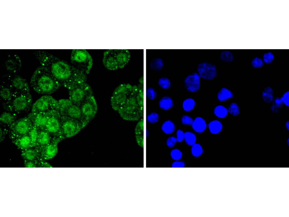 ICC staining of ATF2 in SW480 cells (green). Formalin fixed cells were permeabilized with 0.1% Triton X-100 in TBS for 10 minutes at room temperature and blocked with 10% negative goat serum for 15 minutes at room temperature. Cells were probed with the primary antibody (ET1603-15, 1/50) for 1 hour at room temperature, washed with PBS. Alexa Fluor®488 conjugate-Goat anti-Rabbit IgG was used as the secondary antibody at 1/1,000 dilution. The nuclear counter stain is DAPI (blue).