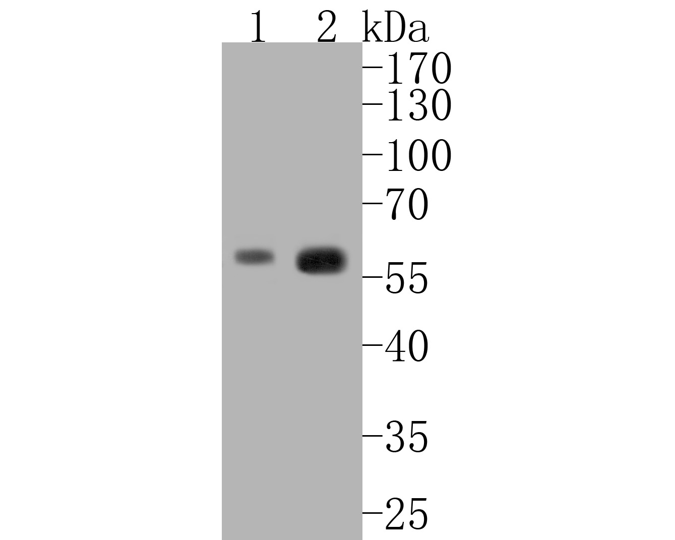 Western blot analysis of Caspase-8 on different lysates. Proteins were transferred to a PVDF membrane and blocked with 5% BSA in PBS for 1 hour at room temperature. The primary antibody (ET1603-16, 1/500) was used in 5% BSA at room temperature for 2 hours. Goat Anti-Rabbit IgG - HRP Secondary Antibody (HA1001) at 1:5,000 dilution was used for 1 hour at room temperature.<br />  Positive control: <br />  Lane 1: Jurkat cell lysate<br />  Lane 2: K562 cell lysate