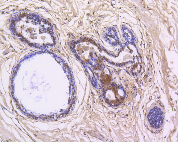 Immunohistochemical analysis of paraffin-embedded human breast carcinoma tissue using anti-NFkB p105/p50 antibody. The section was pre-treated using heat mediated antigen retrieval with Tris-EDTA buffer (pH 8.0-8.4) for 20 minutes.The tissues were blocked in 5% BSA for 30 minutes at room temperature, washed with ddH2O and PBS, and then probed with the primary antibody (ET1603-18, 1/50) for 30 minutes at room temperature. The detection was performed using an HRP conjugated compact polymer system. DAB was used as the chromogen. Tissues were counterstained with hematoxylin and mounted with DPX.