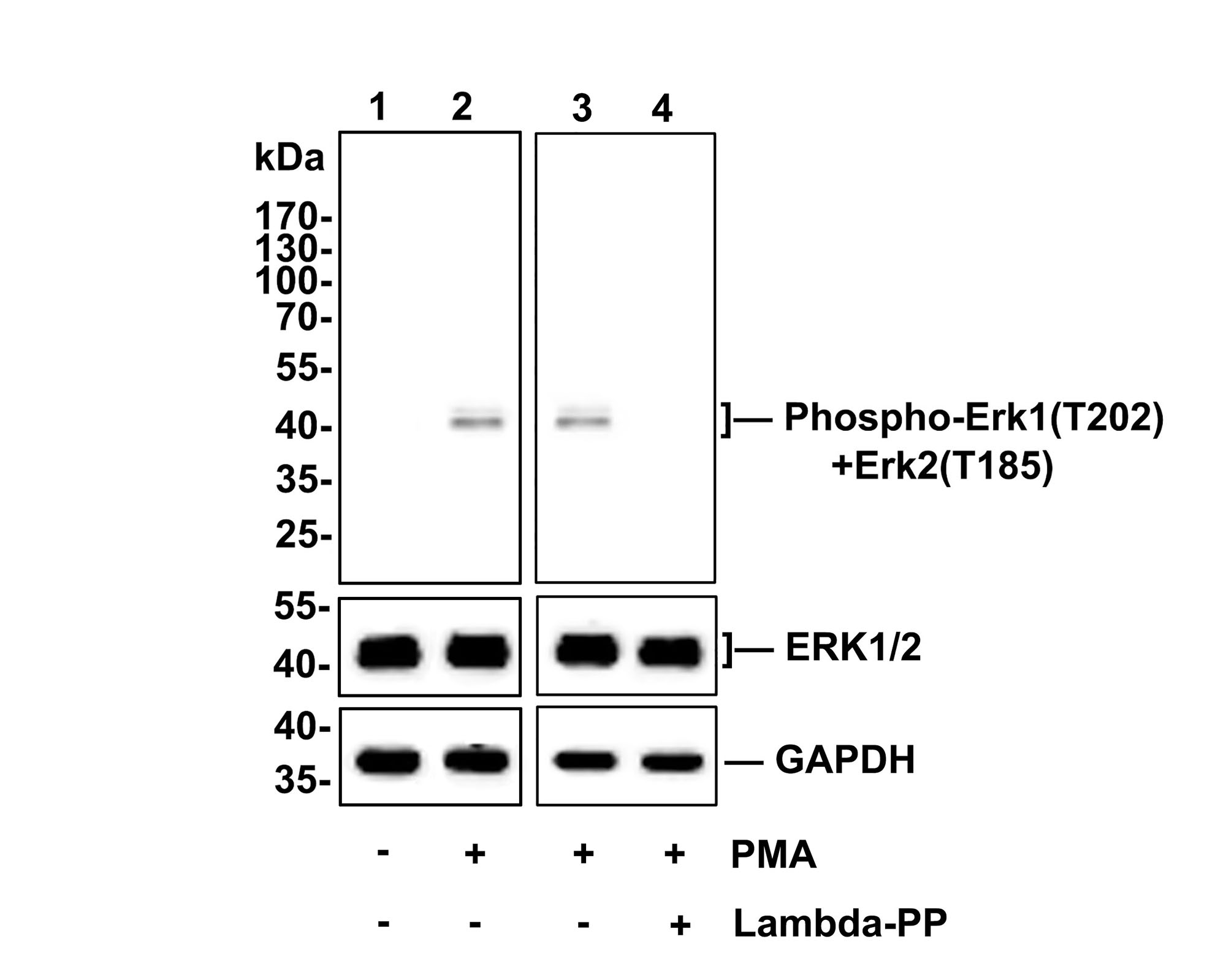 ICC staining of Phospho-Erk1(T202)+Erk2(T185) in A549 cells (green). Formalin fixed cells were permeabilized with 0.1% Triton X-100 in TBS for 10 minutes at room temperature and blocked with 1% Blocker BSA for 15 minutes at room temperature. Cells were probed with the primary antibody (ET1603-22, 1/50) for 1 hour at room temperature, washed with PBS. Alexa Fluor®488 Goat anti-Rabbit IgG was used as the secondary antibody at 1/1,000 dilution. The nuclear counter stain is DAPI (blue).