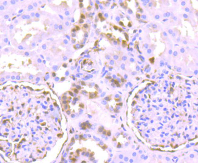 Flow cytometric analysis of Phospho-Erk1(T202)+Erk2(T185) was done on MCF-7 cells. The cells were fixed, permeabilized and stained with the primary antibody (ET1603-22, 1/50) (red). After incubation of the primary antibody at room temperature for an hour, the cells were stained with a Alexa Fluor 488-conjugated Goat anti-Rabbit IgG Secondary antibody at 1/1000 dilution for 30 minutes.Unlabelled sample was used as a control (cells without incubation with primary antibody; black).