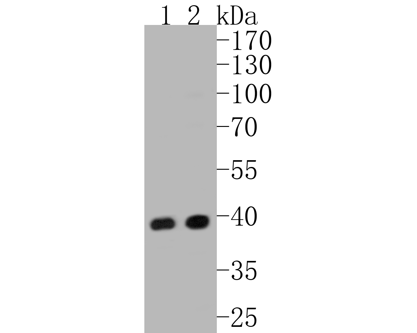 Western blot analysis of ERK2 on different lysates. Proteins were transferred to a PVDF membrane and blocked with 5% BSA in PBS for 1 hour at room temperature. The primary antibody (ET1603-23, 1/500) was used in 5% BSA at room temperature for 2 hours. Goat Anti-Rabbit IgG - HRP Secondary Antibody (HA1001) at 1:5,000 dilution was used for 1 hour at room temperature.<br /> Positive control: <br /> Lane 1: PC-12 cell lysate<br /> Lane 2: Hela cell lysate