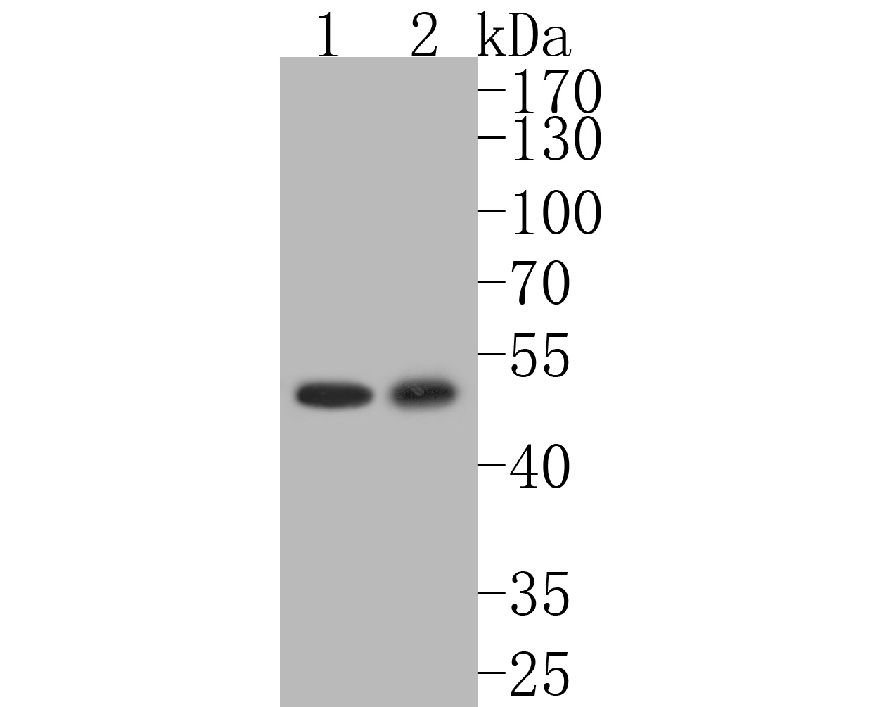 Western blot analysis of Phospho-c-Myc (T58+S62) on different lysates. Proteins were transferred to a PVDF membrane and blocked with 5% BSA in PBS for 1 hour at room temperature. The primary antibody (ET1603-24, 1/500) was used in 5% BSA at room temperature for 2 hours. Goat Anti-Rabbit IgG - HRP Secondary Antibody (HA1001) at 1:5,000 dilution was used for 1 hour at room temperature.<br />  Positive control: <br />  Lane 1: K562 cell lysate<br />  Lane 2: SH-SY5Y cell lysate
