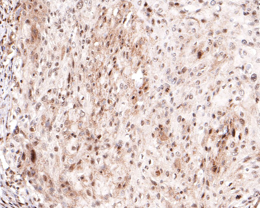 Immunohistochemical analysis of paraffin-embedded human tonsil tissue using anti-Caspase-9 antibody. The section was pre-treated using heat mediated antigen retrieval with Tris-EDTA buffer (pH 8.0-8.4) for 20 minutes.The tissues were blocked in 5% BSA for 30 minutes at room temperature, washed with ddH2O and PBS, and then probed with the primary antibody (ET1603-27, 1/50) for 30 minutes at room temperature. The detection was performed using an HRP conjugated compact polymer system. DAB was used as the chromogen. Tissues were counterstained with hematoxylin and mounted with DPX.