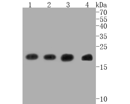 Immunohistochemical analysis of paraffin-embedded human tonsil tissue using anti-Bax antibody. The section was pre-treated using heat mediated antigen retrieval with Tris-EDTA buffer (pH 8.0-8.4) for 20 minutes.The tissues were blocked in 5% BSA for 30 minutes at room temperature, washed with ddH2O and PBS, and then probed with the primary antibody (ET1603-34, 1/50) for 30 minutes at room temperature. The detection was performed using an HRP conjugated compact polymer system. DAB was used as the chromogen. Tissues were counterstained with hematoxylin and mounted with DPX.