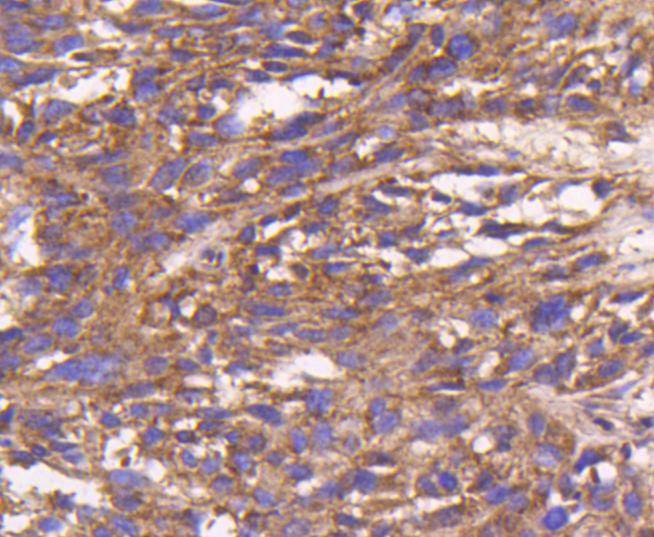 Immunohistochemical analysis of paraffin-embedded mouse prostate tissue using anti-Bax antibody. The section was pre-treated using heat mediated antigen retrieval with Tris-EDTA buffer (pH 8.0-8.4) for 20 minutes.The tissues were blocked in 5% BSA for 30 minutes at room temperature, washed with ddH2O and PBS, and then probed with the primary antibody (ET1603-34, 1/50) for 30 minutes at room temperature. The detection was performed using an HRP conjugated compact polymer system. DAB was used as the chromogen. Tissues were counterstained with hematoxylin and mounted with DPX.