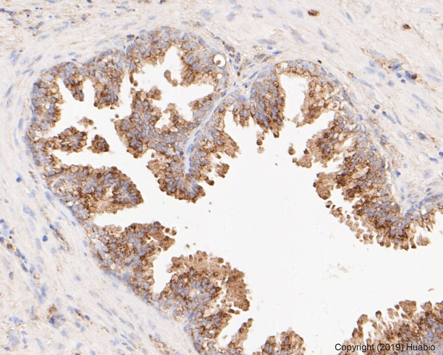 Flow cytometric analysis of Bax was done on A549 cells. The cells were fixed, permeabilized and stained with the primary antibody (ET1603-34, 1/50) (red). After incubation of the primary antibody at room temperature for an hour, the cells were stained with a Alexa Fluor 488-conjugated Goat anti-Rabbit IgG Secondary antibody at 1/1000 dilution for 30 minutes.Unlabelled sample was used as a control (cells without incubation with primary antibody; black).