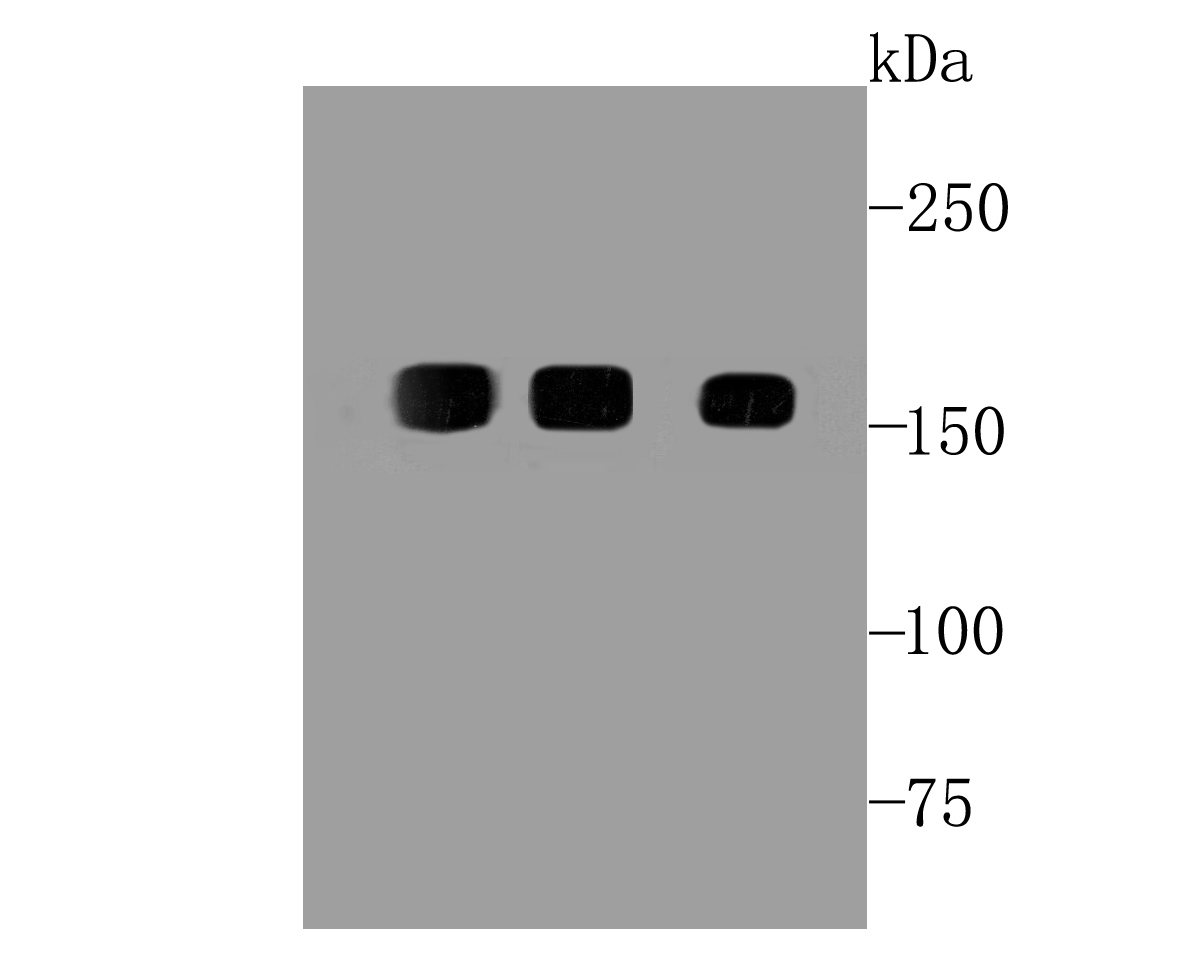 Western blot analysis of EGFR on different cell lysates using anti-EGFR at 1/500 dilution.<br /> Positive control: <br /> Line 1: Hela <br /> Line 2: A431 <br /> Line 3: HUVEC