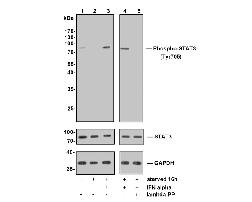 Western blot analysis of Phospho-STAT3(Tyr705) on different lysates. Proteins were transferred to a PVDF membrane and blocked with 5% BSA in PBS for 1 hour at room temperature. The primary antibody (ET1603-40, 1/500) was used in 5% BSA at room temperature for 2 hours. Goat Anti-Rabbit IgG - HRP Secondary Antibody (HA1001) at 1:5,000 dilution was used for 1 hour at room temperature.<br />  Positive control: <br />  Lane 1: NIH/3T3 cell lysate<br />  Lane 2: A549 cell lysate<br />  Lane 2: SiHa cell lysate