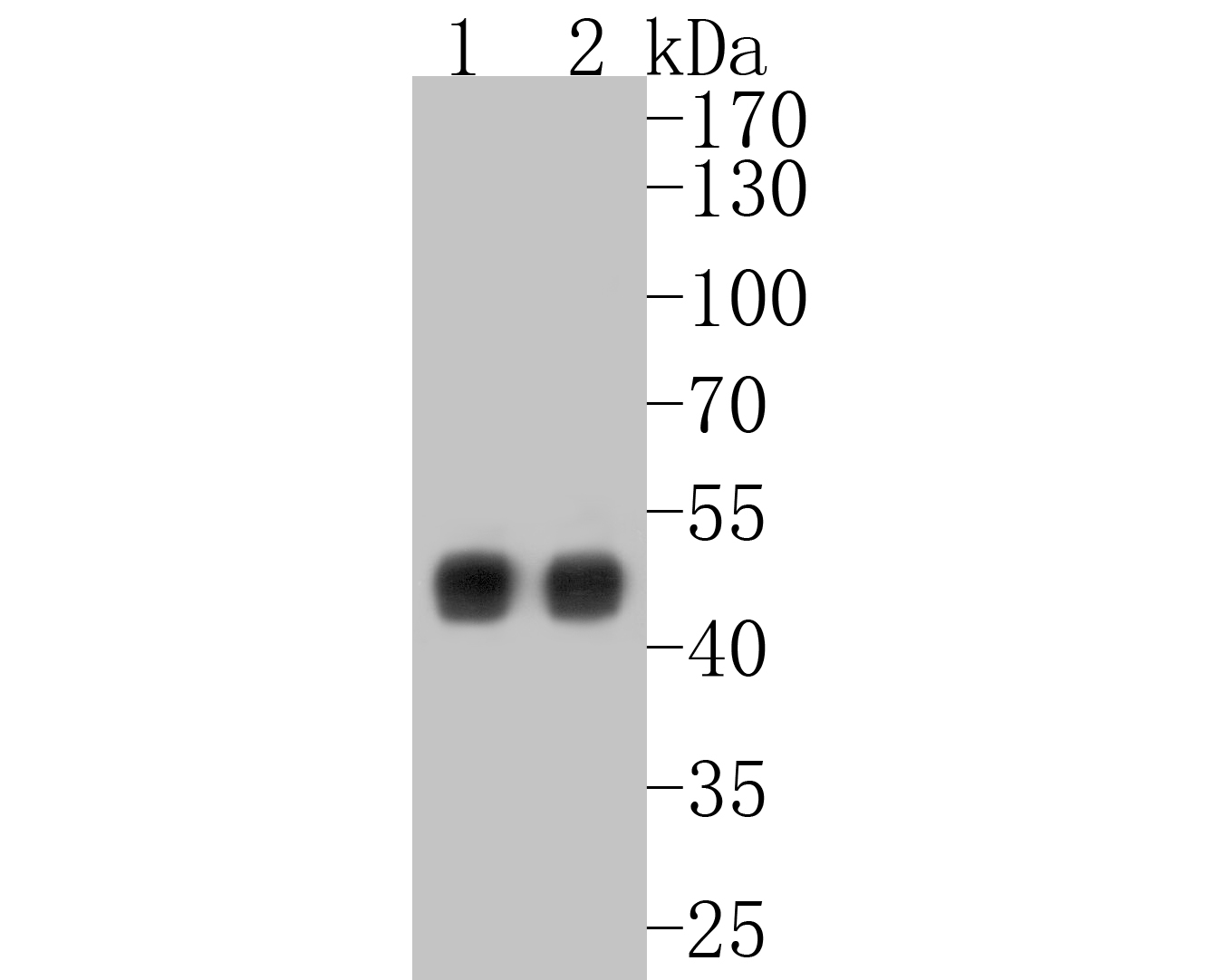 Western blot analysis of Cytokeratin 18 on different lysates. Proteins were transferred to a PVDF membrane and blocked with 5% BSA in PBS for 1 hour at room temperature. The primary antibody (ET1603-8, 1/500) was used in 5% BSA at room temperature for 2 hours. Goat Anti-Rabbit IgG - HRP Secondary Antibody (HA1001) at 1:5,000 dilution was used for 1 hour at room temperature.<br />  Positive control: <br />  Lane 1: A431 cell lysate<br />  Lane 2: human lung tissue lysate
