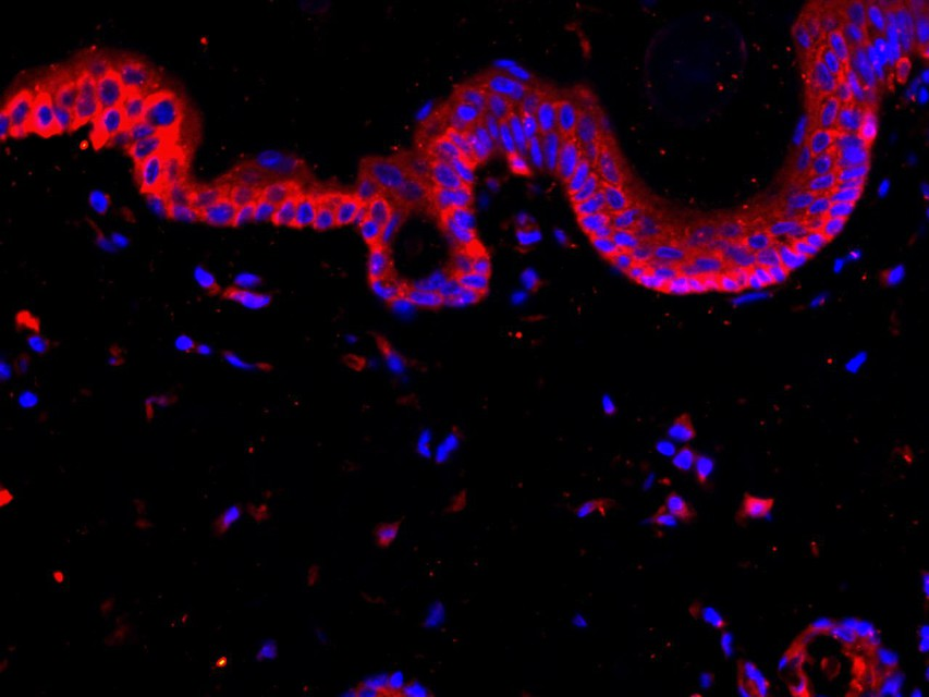 Flow cytometric analysis of Cytokeratin 18 was done on MCF-7 cells. The cells were fixed, permeabilized and stained with the primary antibody (ET1603-8, 1/50) (red). After incubation of the primary antibody at room temperature for an hour, the cells were stained with a Alexa Fluor 488-conjugated Goat anti-Rabbit IgG Secondary antibody at 1/1000 dilution for 30 minutes.Unlabelled sample was used as a control (cells without incubation with primary antibody; black).