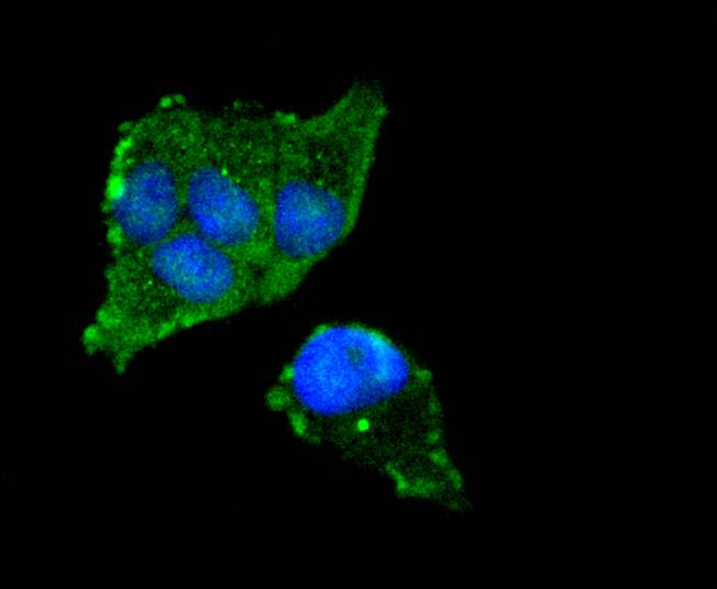 ICC staining FOXO3A in Hela cells (green). The nuclear counter stain is DAPI (blue). Cells were fixed in paraformaldehyde, permeabilised with 0.25% Triton X100/PBS.