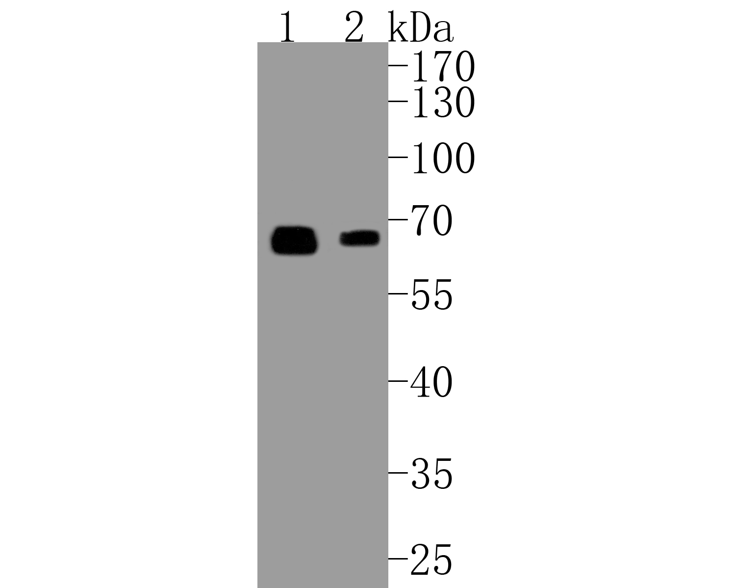Western blot analysis of Smad4 on different lysates. Proteins were transferred to a PVDF membrane and blocked with 5% BSA in PBS for 1 hour at room temperature. The primary antibody (ET1604-12, 1/500) was used in 5% BSA at room temperature for 2 hours. Goat Anti-Rabbit IgG - HRP Secondary Antibody (HA1001) at 1:5,000 dilution was used for 1 hour at room temperature.<br /> Positive control: <br /> Lane 1: PC-12 cell lysate<br /> Lane 2: SH-SY5Y cell lysate