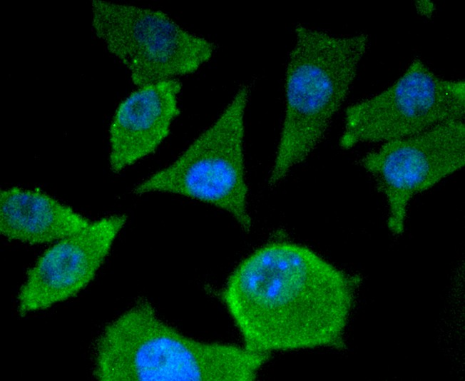 Immunohistochemical analysis of paraffin-embedded human lung tissue using anti-Smad4 antibody. The section was pre-treated using heat mediated antigen retrieval with Tris-EDTA buffer (pH 8.0-8.4) for 20 minutes.The tissues were blocked in 5% BSA for 30 minutes at room temperature, washed with ddH2O and PBS, and then probed with the primary antibody (ET1604-12, 1/50) for 30 minutes at room temperature. The detection was performed using an HRP conjugated compact polymer system. DAB was used as the chromogen. Tissues were counterstained with hematoxylin and mounted with DPX.