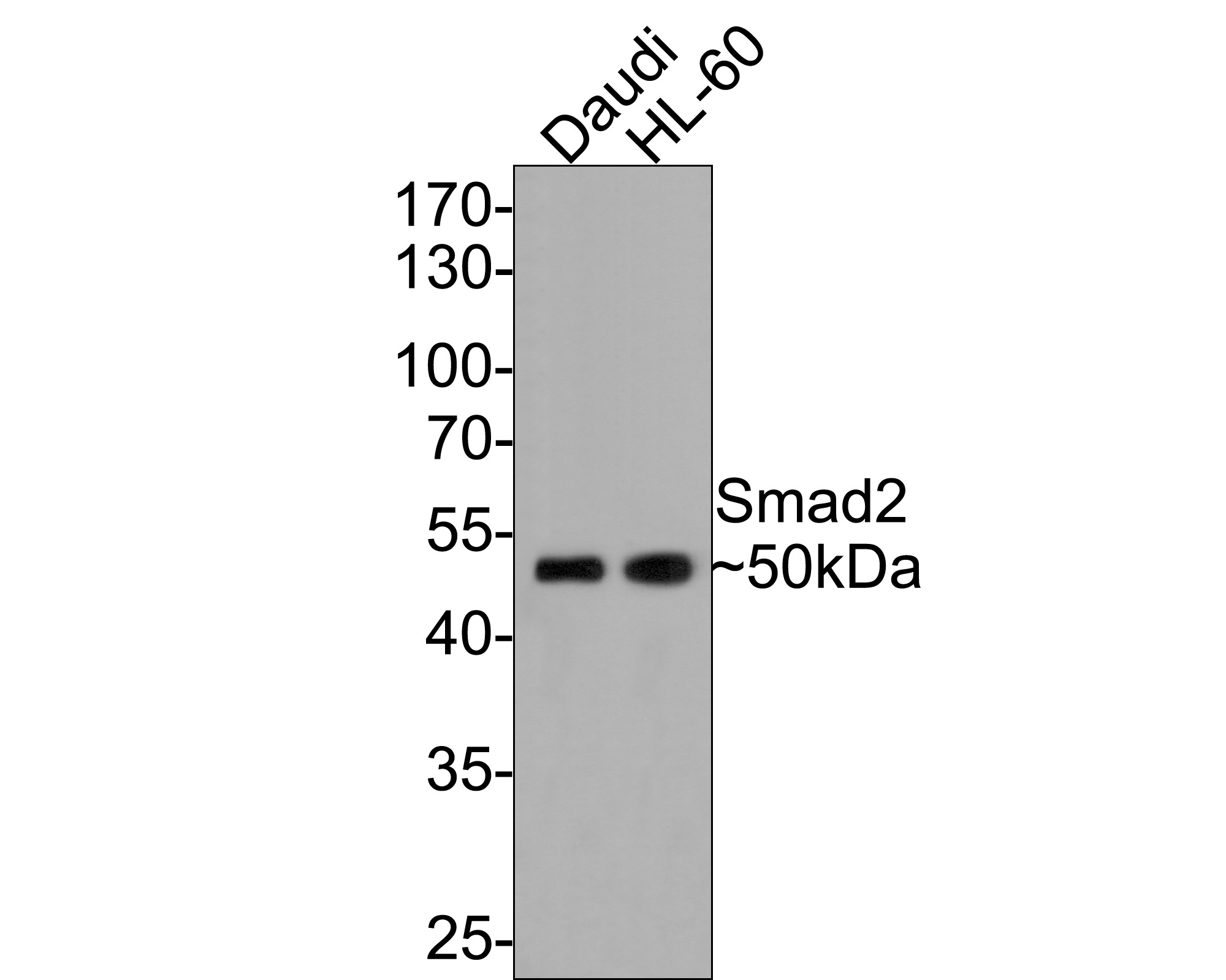 Western blot analysis of Smad2 on different lysates. Proteins were transferred to a PVDF membrane and blocked with 5% BSA in PBS for 1 hour at room temperature. The primary antibody (ET1604-22, 1/500) was used in 5% BSA at room temperature for 2 hours. Goat Anti-Rabbit IgG - HRP Secondary Antibody (HA1001) at 1:5,000 dilution was used for 1 hour at room temperature.<br />  Positive control: <br />  Lane 1: Hela cell lysate<br />  Lane 2: A431 cell lysate<br />  Lane 3: PC-12 cell lysate