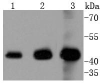 Western blot analysis of ERK1 on different lysates using anti-ERK1 antibody at 1/1,000 dilution. Positive control:    Lane 1: Hela                Lane 2: Jurkat  Lane 3: K562