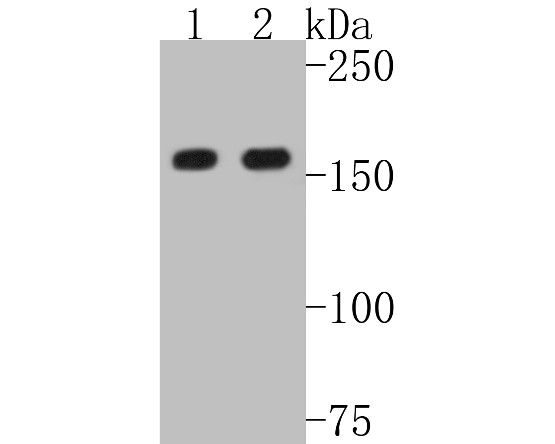 Western blot analysis of MSH6 on different lysates. Proteins were transferred to a PVDF membrane and blocked with 5% BSA in PBS for 1 hour at room temperature. The primary antibody (ET1604-39, 1/500) was used in 5% BSA at room temperature for 2 hours. Goat Anti-Rabbit IgG - HRP Secondary Antibody (HA1001) at 1:5,000 dilution was used for 1 hour at room temperature.<br /> Positive control: <br /> Lane 1: A549 cell lysate<br /> Lane 2: HepG2 cell lysate