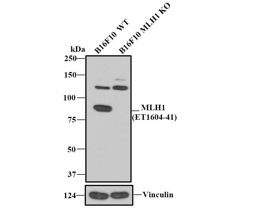Western blot analysis of MLH1 on different lysates. Proteins were transferred to a PVDF membrane and blocked with 5% BSA in PBS for 1 hour at room temperature. The primary antibody (ET1604-41, 1/500) was used in 5% BSA at room temperature for 2 hours. Goat Anti-Rabbit IgG - HRP Secondary Antibody (HA1001) at 1:5,000 dilution was used for 1 hour at room temperature.<br />  Positive control: <br />  Lane 1: Daudi cell lysate<br />  Lane 2: K562 cell lysate<br />  Lane 1: A431 cell lysate<br />  Lane 2: HL-60 cell lysate