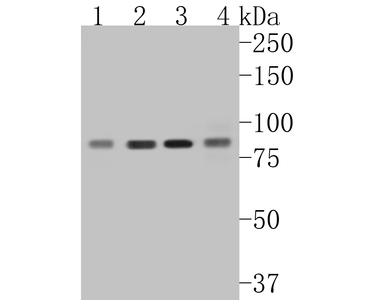 ICC staining of MLH1 in HepG2 cells (green). Formalin fixed cells were permeabilized with 0.1% Triton X-100 in TBS for 10 minutes at room temperature and blocked with 1% Blocker BSA for 15 minutes at room temperature. Cells were probed with the primary antibody (ET1604-41, 1/50) for 1 hour at room temperature, washed with PBS. Alexa Fluor®488 Goat anti-Rabbit IgG was used as the secondary antibody at 1/1,000 dilution. The nuclear counter stain is DAPI (blue).