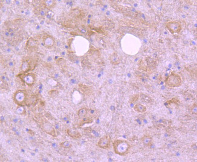 Immunohistochemical analysis of paraffin-embedded mouse skin tissue using anti-EGFR antibody. The section was pre-treated using heat mediated antigen retrieval with Tris-EDTA buffer (pH 8.0-8.4) for 20 minutes.The tissues were blocked in 5% BSA for 30 minutes at room temperature, washed with ddH2O and PBS, and then probed with the primary antibody (ET1604-44, 1/50) for 30 minutes at room temperature. The detection was performed using an HRP conjugated compact polymer system. DAB was used as the chromogen. Tissues were counterstained with hematoxylin and mounted with DPX.