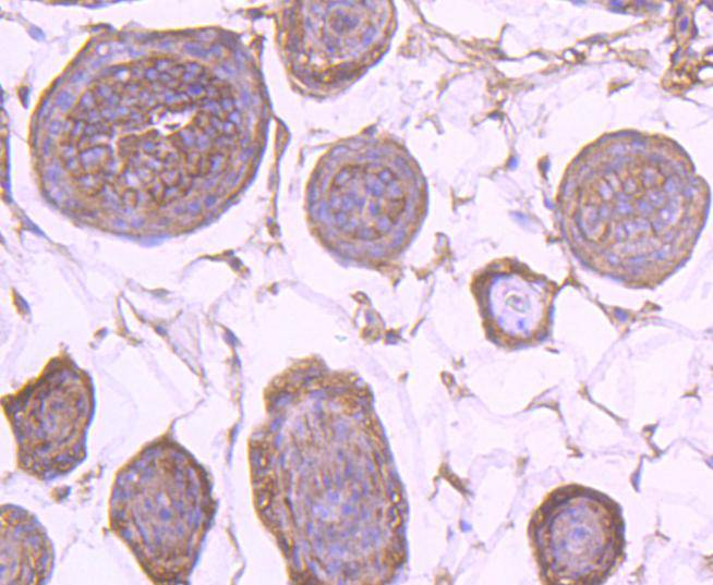 Flow cytometric analysis of EGFR was done on A431 cells. The cells were fixed, permeabilized and stained with the primary antibody (ET1604-44, 1/50) (red). After incubation of the primary antibody at room temperature for an hour, the cells were stained with a Alexa Fluor 488-conjugated Goat anti-Rabbit IgG Secondary antibody at 1/1000 dilution for 30 minutes.Unlabelled sample was used as a control (cells without incubation with primary antibody; black).