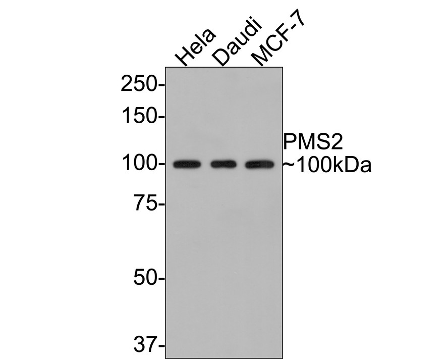 Western blot analysis of PMS2 on different lysates. Proteins were transferred to a PVDF membrane and blocked with 5% BSA in PBS for 1 hour at room temperature. The primary antibody (ET1605-1, 1/500) was used in 5% BSA at room temperature for 2 hours. Goat Anti-Rabbit IgG - HRP Secondary Antibody (HA1001) at 1:5,000 dilution was used for 1 hour at room temperature.<br />  Positive control: <br />  Lane 1: MCF-7 cell lysate<br />  Lane 2: Hela cell lysate
