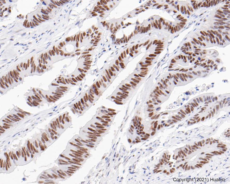 Flow cytometric analysis of PMS2 was done on Hela cells. The cells were fixed, permeabilized and stained with the primary antibody (ET1605-1, 1/50) (red). After incubation of the primary antibody at room temperature for an hour, the cells were stained with a Alexa Fluor 488-conjugated Goat anti-Rabbit IgG Secondary antibody at 1/1000 dilution for 30 minutes.Unlabelled sample was used as a control (cells without incubation with primary antibody; black).