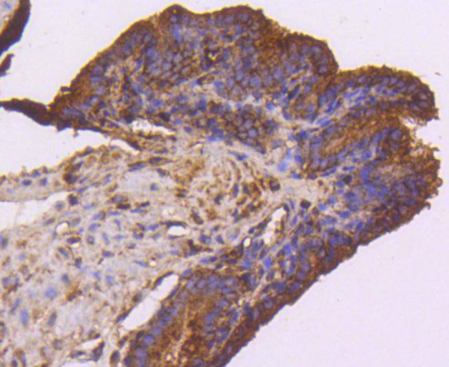 Immunohistochemical analysis of paraffin-embedded mouse brain tissue using anti-VEGF Receptor 1 antibody. The section was pre-treated using heat mediated antigen retrieval with Tris-EDTA buffer (pH 8.0-8.4) for 20 minutes.The tissues were blocked in 5% BSA for 30 minutes at room temperature, washed with ddH2O and PBS, and then probed with the primary antibody (ET1605-11, 1/50) for 30 minutes at room temperature. The detection was performed using an HRP conjugated compact polymer system. DAB was used as the chromogen. Tissues were counterstained with hematoxylin and mounted with DPX.