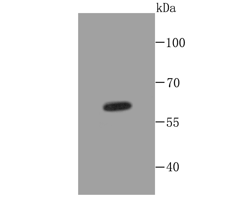 Western blot analysis of Cytokeratin 5 on A431 cell lysates using anti-Cytokeratin 5 at 1/500 dilution.