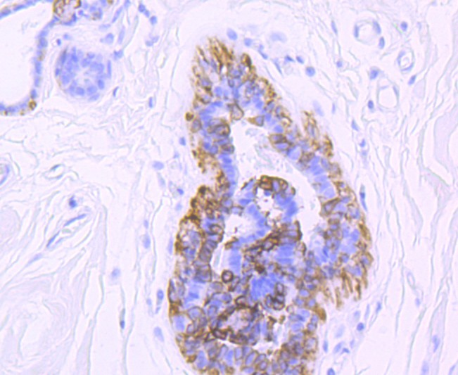 Immunohistochemical analysis of paraffin-embedded human brest cancer tissue using anti-Cytokeratin 5 antibody. Counter stained with hematoxylin.