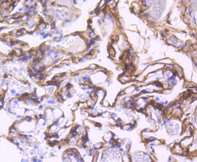 Immunohistochemical analysis of paraffin-embedded human lung tissue using anti-PDGF Receptor beta antibody. Counter stained with hematoxylin.