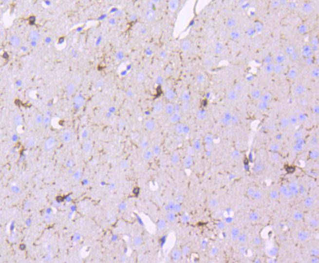 Immunohistochemical analysis of paraffin-embedded mouse brain tissue using anti-PDGF Receptor beta antibody. Counter stained with hematoxylin.