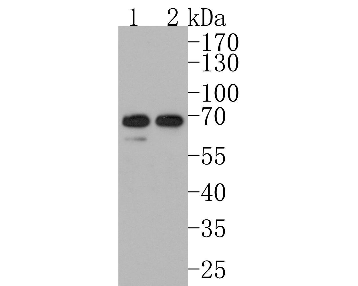 Western blot analysis of FUBP1 on different lysates using anti-FUBP1 antibody at 1/1,000 dilution. Positive control:    Lane 1: Hela                  Lane 2: Raji