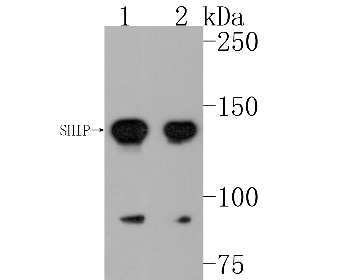 Western blot analysis of SHIP on different lysates. Proteins were transferred to a PVDF membrane and blocked with 5% BSA in PBS for 1 hour at room temperature. The primary antibody (ET1605-30, 1/500) was used in 5% BSA at room temperature for 2 hours. Goat Anti-Rabbit IgG - HRP Secondary Antibody (HA1001) at 1:200,000 dilution was used for 1 hour at room temperature.<br /> Positive control: <br /> Lane 1: HL-60 cell lysate<br /> Lane 2: Daudi cell lysate