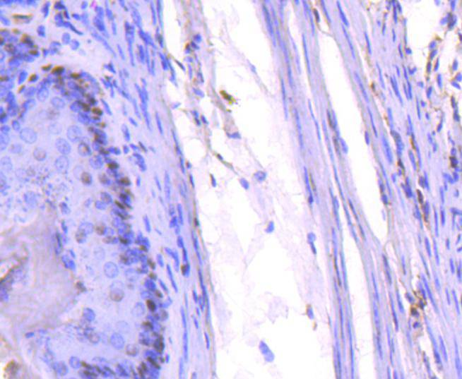 Flow cytometric analysis of PCNA was done on Hela cells. The cells were fixed, permeabilized and stained with the primary antibody (ET1605-38, 1/50) (red). After incubation of the primary antibody at room temperature for an hour, the cells were stained with a Alexa Fluor 488-conjugated Goat anti-Rabbit IgG Secondary antibody at 1/1000 dilution for 30 minutes.Unlabelled sample was used as a control (cells without incubation with primary antibody; black).