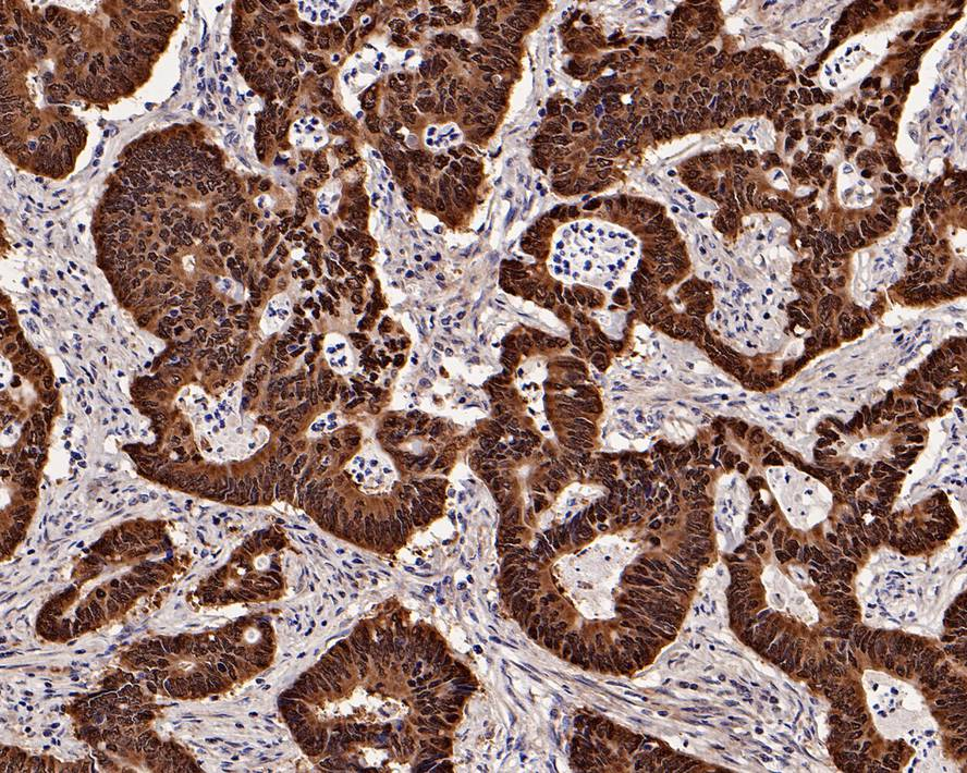 Flow cytometric analysis of CDX2 was done on Hela cells. The cells were fixed, permeabilized and stained with the primary antibody (ET1605-4, 1/50) (red). After incubation of the primary antibody at room temperature for an hour, the cells were stained with a Alexa Fluor 488-conjugated Goat anti-Rabbit IgG Secondary antibody at 1/1000 dilution for 30 minutes.Unlabelled sample was used as a control (cells without incubation with primary antibody; black).