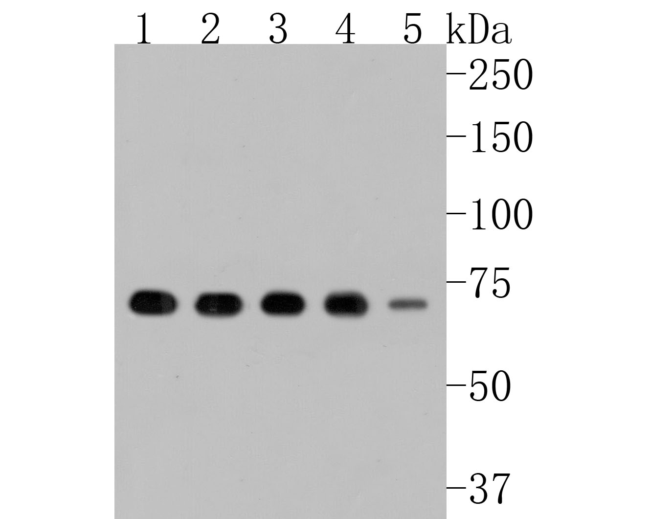 Western blot analysis of YY1 on different lysates. Proteins were transferred to a PVDF membrane and blocked with 5% BSA in PBS for 1 hour at room temperature. The primary antibody (ET1605-40, 1/500) was used in 5% BSA at room temperature for 2 hours. Goat Anti-Rabbit IgG - HRP Secondary Antibody (HA1001) at 1:5,000 dilution was used for 1 hour at room temperature.<br /> Positive control: <br /> Lane 1: Hela cell lysate<br /> Lane 2: Jurkat cell lysate<br /> Lane 3: HL-60 cell lysate<br /> Lane 4: Daudi cell lysate<br /> Lane 5: THP-1 cell lysate